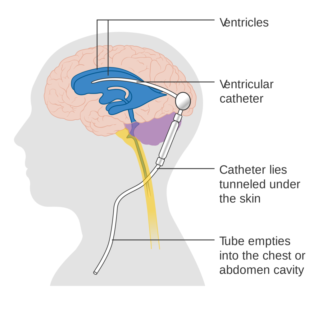 Ventriculoperitoneal Shunt